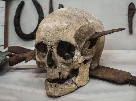 Galik Savaşlarda ölmüş bir Romalı kafatası M.Ö. 1. yüzyıl